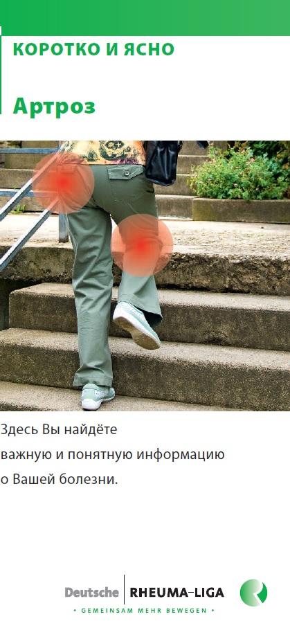 russ-arthrose-k+k